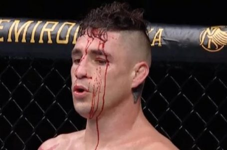 'Is it a DQ if I can't continue? UFC debate: Diego Sanchez chose to take the win